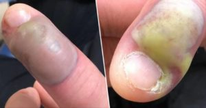 Reasons to stop biting your nails